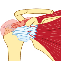 Rotator Cuff and Bursitis